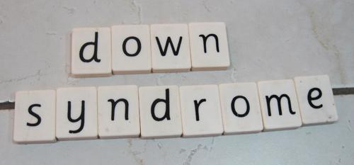 Down Syndrome Baby Dubai | https://www.pediatriciandubai.blog/development-of-children-dubai/down-syndrome-baby-dubai/ This Syndrome Affects Child's Mental & Physical Development