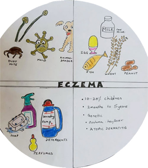 Eczema In Children Dubai | Why Does My Child Have Skin Rash Despite Our Good Hygiene?