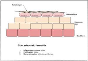 Seborrheic Dermatitis In Children Dubai | Does Your Child's Itchiness Require Professional Help?